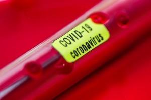 coronavírus, Covid-19